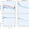 Fracción de eyección reducida en pacientes con Estenosis Aórtica