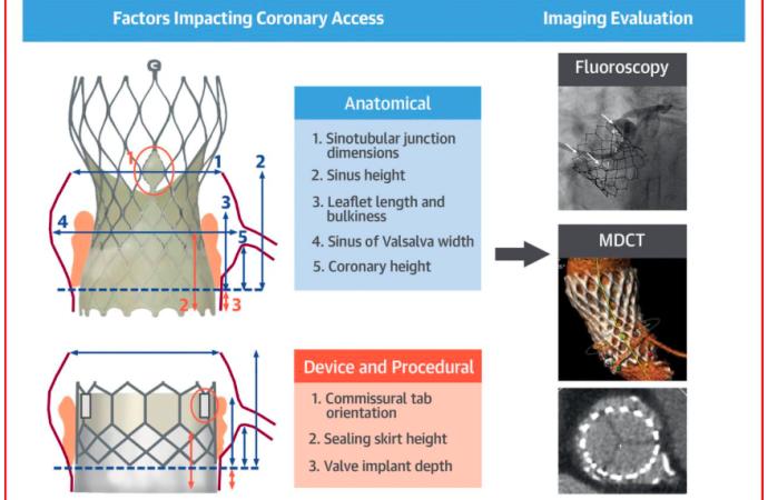 Coronariografía y Angioplastia coronaria post TAVI