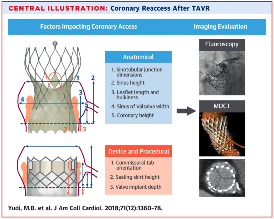 SIAC   Coronariografía y Angioplastia coronaria post TAVI   SIAC