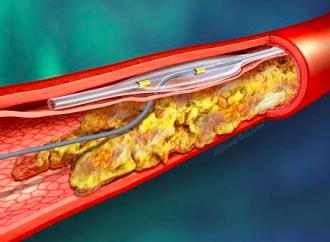 Intervención Coronaria Percutánea de Oclusiones Totales Crónica Evidencia y Controversias