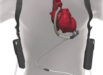 Momentum 3 – Resultado a 2 años en pacientes tratados con heartmate 3