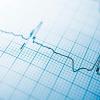 Fibrilación Auricular subclínica detectada por dispositivos y su riesgo de Stroke Revisión y Metanálsis