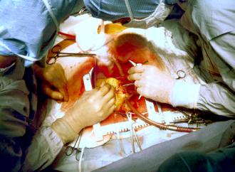 Arteria Radial vs Vena Safena en Cirugía Revascularización Miocárdica
