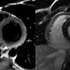 Incidencia de Miocarditis con screening sistemático por Resonancia Magnética Cardíaca