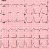 ¿Es seguro utilizar Ticagrelor en pacientes con Infarto Agudo de Miocardio que fueron trombolizados?