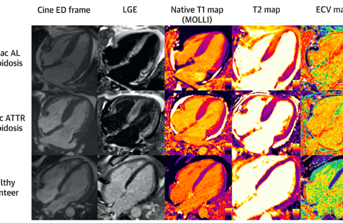 Edema miocárdico y su pronóstico en Amiloidosis