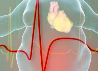 Falla cardíaca con fracción de eyección preservada en el paciente obeso