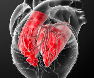 Causas de muerte en una cohorte contemporanea de adultos con cardiopatia congenita