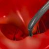 COAPT TRIAL: Utilización de Mitraclip en pacientes con insuficiencia cardíaca e insuficiencia mitral secundaria