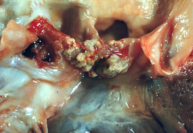 ¿Tiene lugar en el tratamiento de la endocarditis infecciosa un esquema de antibióticos que se administre por vía oral en forma ambulatoria?