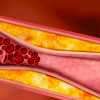 Interjuego entre Hipercolesterolemia e Inflamación en aterosclerosis