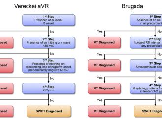 Limitaciones en el uso de algoritmos diagnósticos de Taquicardia con QRS ancho aplicados por médicos no-cardiologos