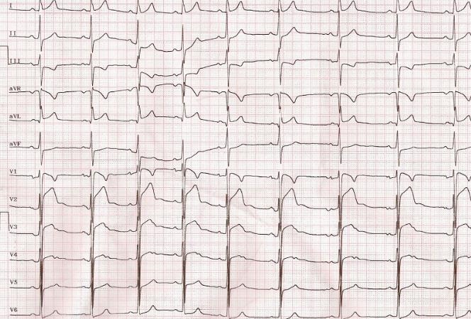 Electrocardiograma en atletas: hallazgos normales y anormales