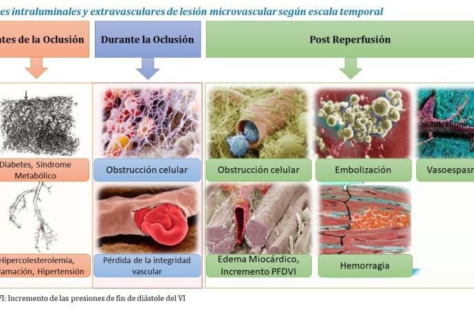 Injuria Microvascular Post Reperfusión en Infartos Agudos de Miocardio