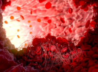 Dosis inapropiadas de anticoagulantes directos en la práctica clínica: prevalencia y factores asociados