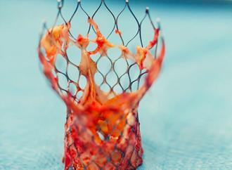 Resultados y durabilidad a 5 años post TAVI en pacientes de alto riesgo