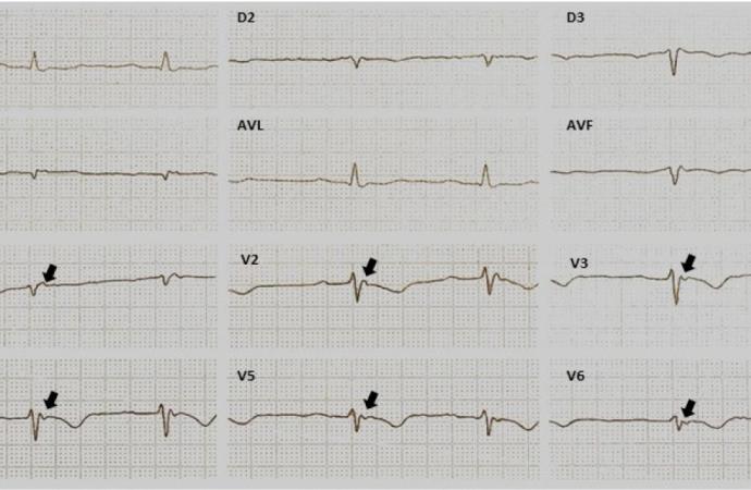 Cardiomiopatía Arritmogénica del Ventrículo Derecho/Displasia