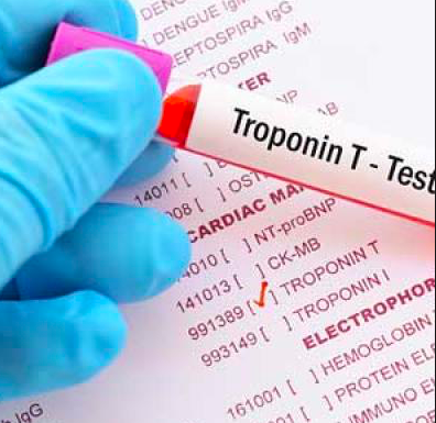 ¿Troponinitis?  Elevación de troponina en pacientes que no presentan un evento coronario
