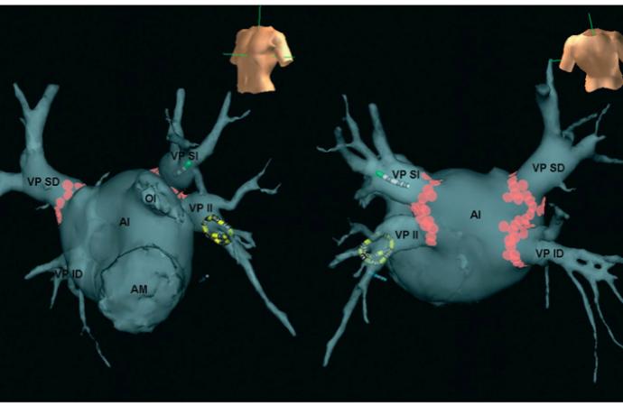 Ablación de la fibrilación auricular en la insuficiencia cardíaca: estado actual y perspectivas futuras