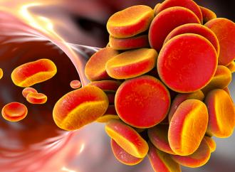 DOACs, tromboembolismo y cáncer. La búsqueda continúa