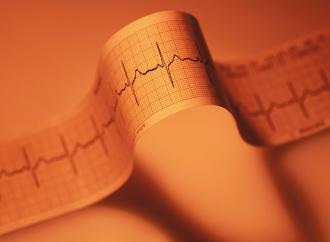 Frecuencia cardiaca, uso de beta bloqueantes y desenlaces en insuficiencia cardiaca con fraccion de eyeccion reducida: ¿hay oportunidades de mejores resultados?