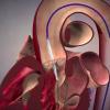 ACC19 – Reemplazo valvular aórtico percutáneo en pacientes de bajo riesgo