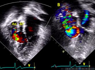 Nuevas guías de manejo del adulto con cardiopatía congénita AHA/ACC-2018