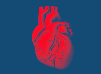La insuficiencia cardíaca con fracción de eyección preservada infrecuentemente evoluciona a un fenotipo con FEY reducida en sobrevivientes a largo plazo