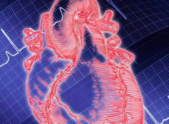 Shock Cardiogénico en Takotsubo vs Infarto Agudo de Miocardio