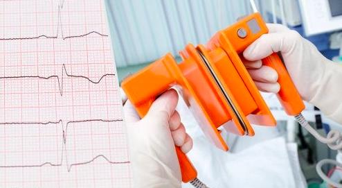 Pre y postratamiento con  amiodarona  para la cardioversión eléctrica electiva de fibrilación auricular: una alternativa terapéutica olvidada
