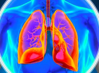 Actualización en hipertensión pulmonar tromboembolica cronica: