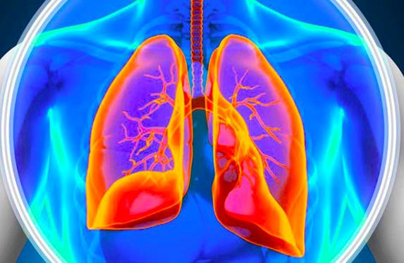 Actualización en hipertensión pulmonar tromboembólica crónica: