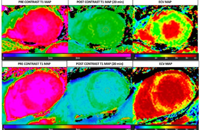 Fibrosis miocárdica en estenosis aórtica bajo flujo bajo gradiente