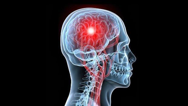 Accidente cerebrovascular isquémico en adultos con cardiopatía congénita: Un estudio de cohorte poblacional