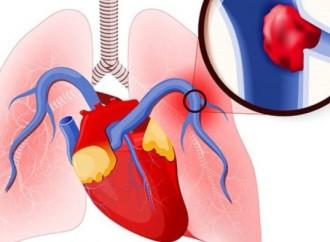 Rol del ecocardiograma en el manejo del tromboembolismo pulmonar agudo