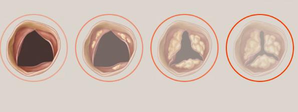 Pobre sobrevida a largo plazo en pacientes con estenosis aórtica moderada