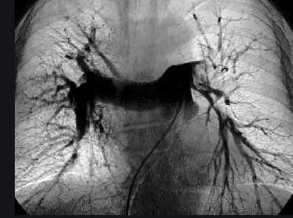 Tratamiento intervencionista en el tromboembolismo de pulmón agudo