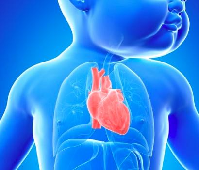 Cardiopatías congénitas: Signos que predicen complicaciones cardiovasculares postnatales