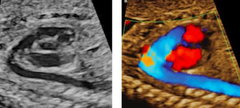 Coartación aórtica en el feto: diagnóstico y dificultades