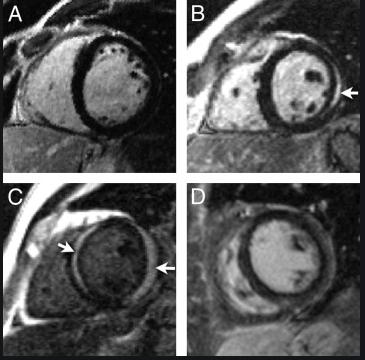 Detección de edema y fibrosis en miocarditis