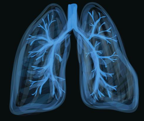 Presentación clínica, tratamiento y resultados a corto plazo de la lesión pulmonar asociada con cigarrillos electrónicos o vapeo