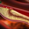 Un enfoque diferente hacia la enfermedad arterial coronaria