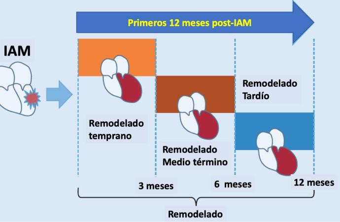 Remodelado post infarto del ventrículo izquierdo Implicancias de la mejoría de la función sistólica y pronóstico en la nueva era