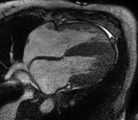 Estenosis aórtica y amiloidosis cardiaca: lo esencial es invisible a los ojos