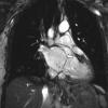 Resonancia Magnética Cardiovascular: aplicaciones y consideraciones prácticas para el cardiólogo general