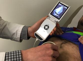 Ecocardiograma portatil versus auscultación para la detección de cardiopatía reumática