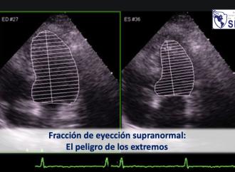 Fracción de eyección supranormal: El peligro de los extremos