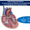 Un nuevo punto de inflexión en la estratificación eco-cardiográfica de la estenosis aórtica