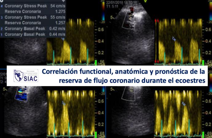 Correlación functional, anatómica y pronóstica de la reserva de flujo coronario durante el ecoestres