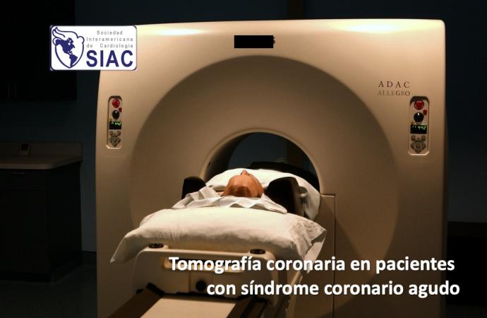 Tomografía coronaria en pacientes con síndrome coronario agudo